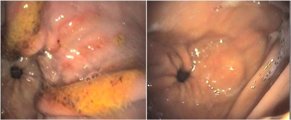 Glandular ulcers - 28 to 35 day healing
