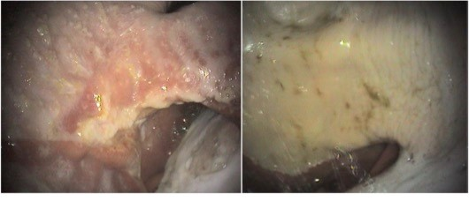 Squamous gastric ulcers - 28 day healing